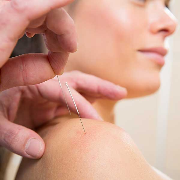 Akupunktur der Schulter